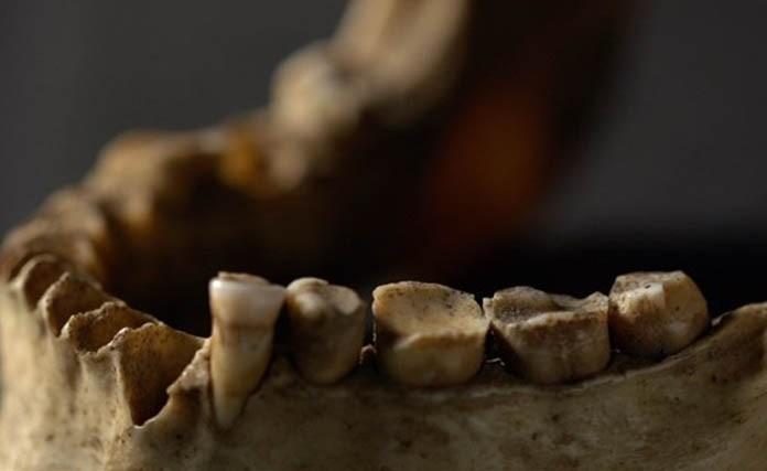 dientes craneo restos oseos