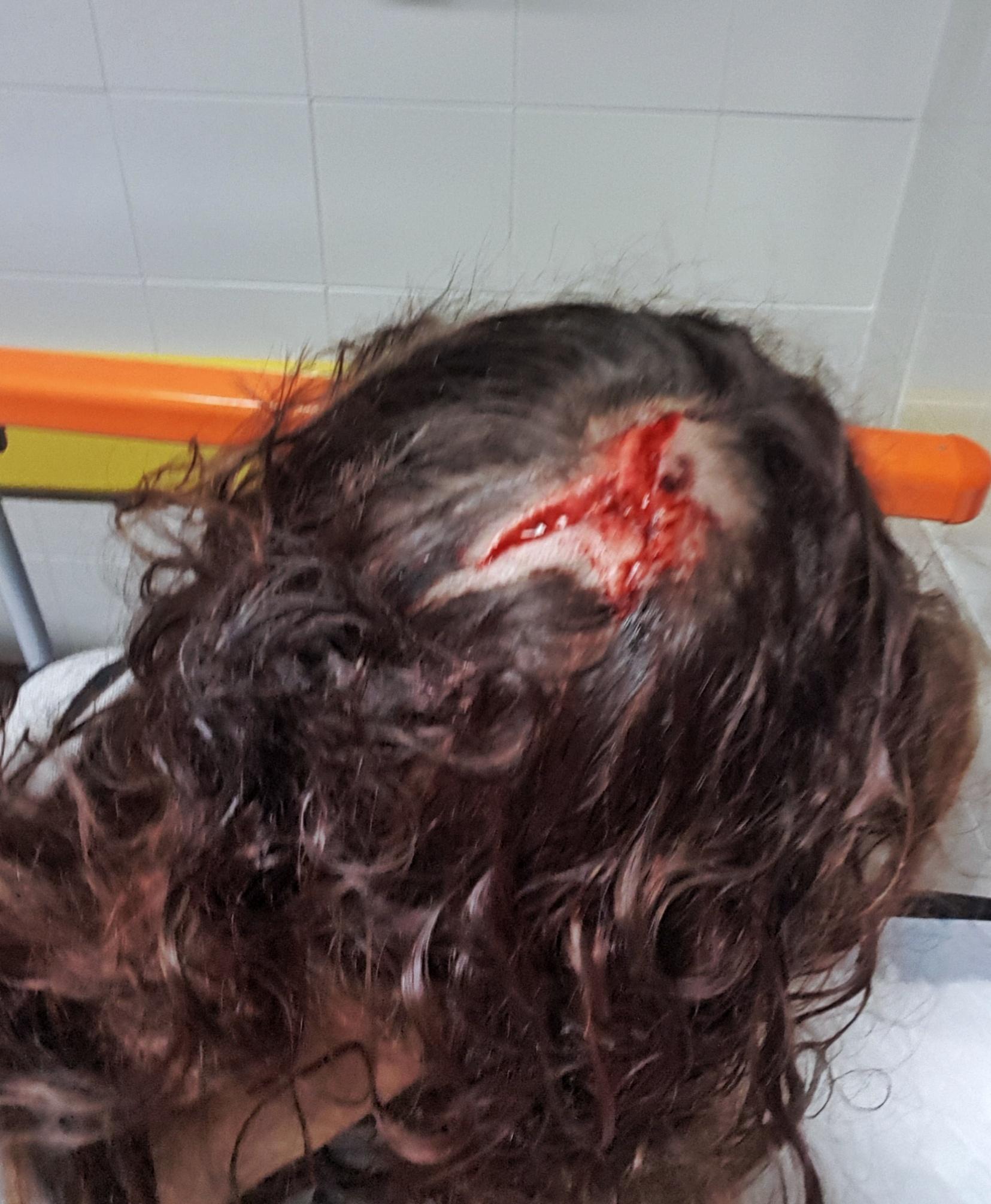 chica herida con objeto peligroso por pasear a su perro en león
