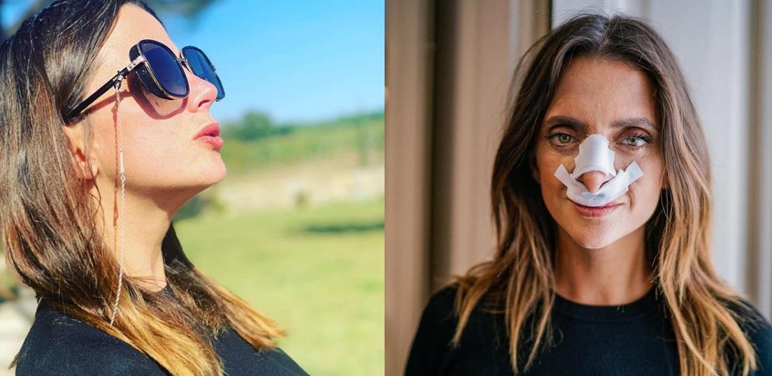 operación de nariz macarena gomez