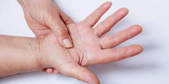 dia mundial esclerodermia nenfermedadn rara